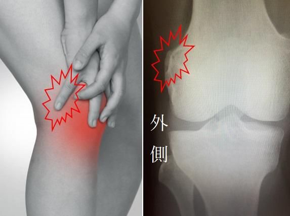 00f1bf93c0 「大腿骨外顆周辺に限って圧痛が存在します(図)。腸脛靱帯は明らかに緊張が増し、時に靱帯の走行に沿って疼痛が放散します。初期はランニング後に痛みが発生し ます ...